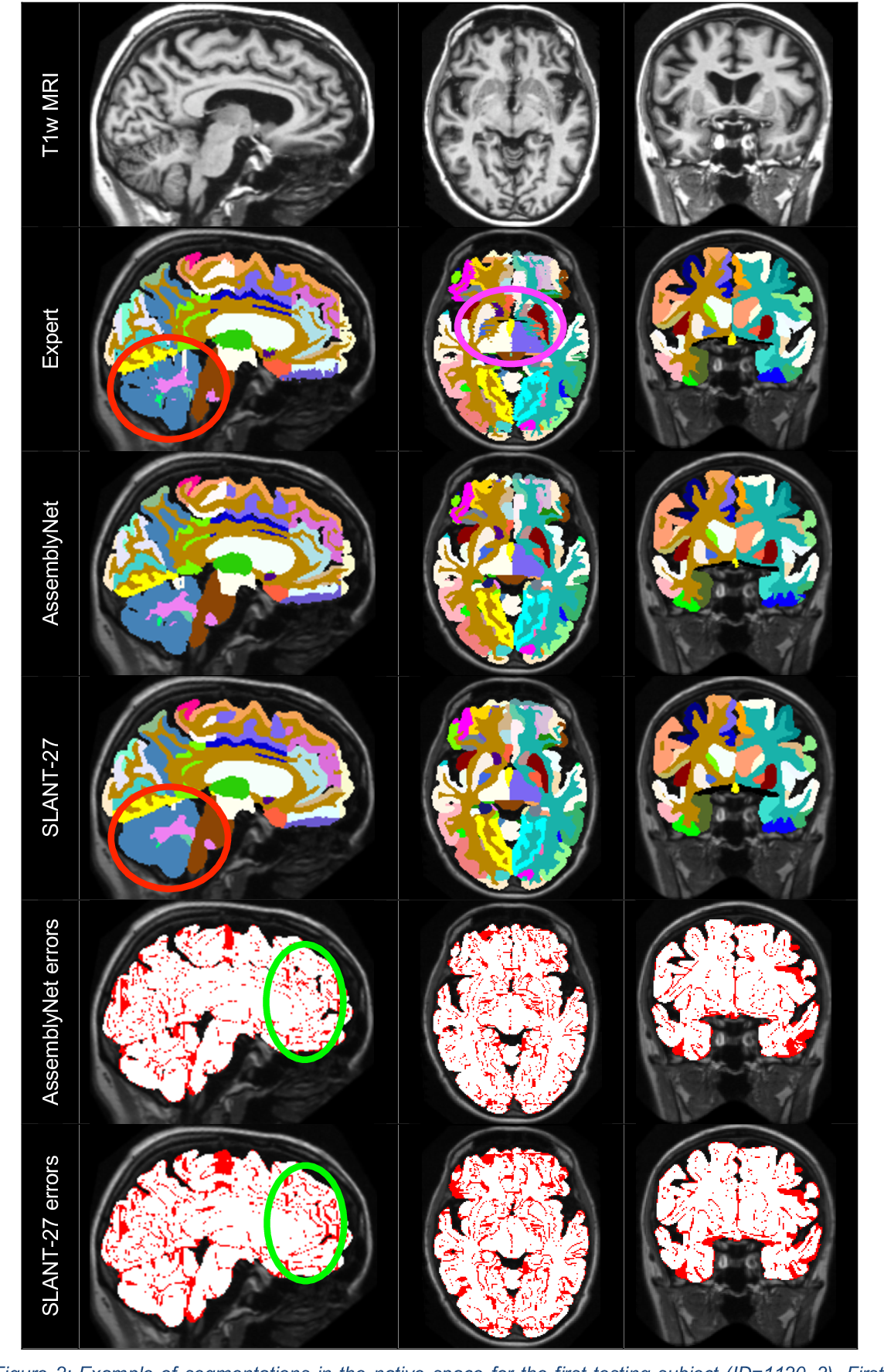 Figure 4 for AssemblyNet: A large ensemble of CNNs for 3D Whole Brain MRI Segmentation
