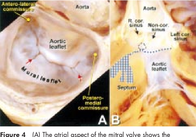 Figure 4 From Anatomy Of The Mitral Valve Semantic Scholar