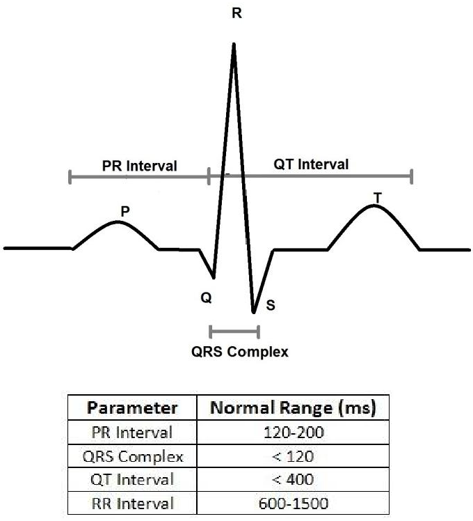 ECG analyzing program for arrhythmia detection - Semantic Scholar