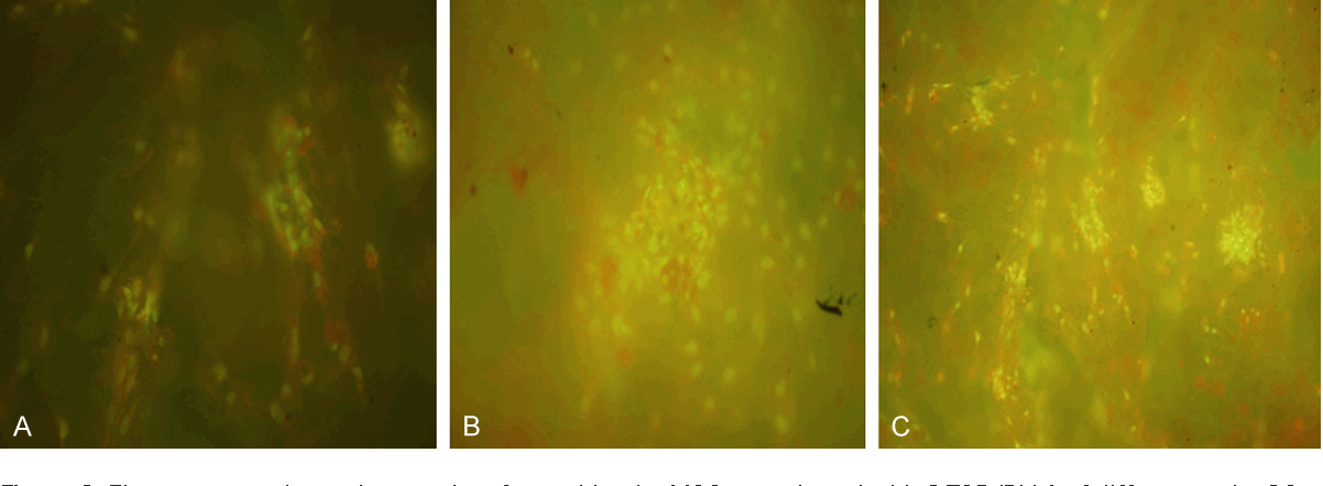 Figure 2. Fluorescence photomicrographs of osteoblastic rMSCs cocultured with β-TCP/PLLA of different ratio. 20×. A: β-TCP/PLLA = 1:1; B: β-TCP/PLLA = 1:2; C: β-TCP/PLLA = 2:1.