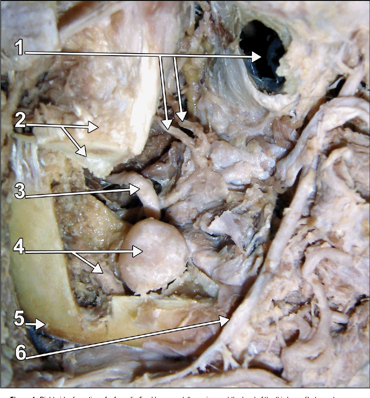 Dissection And Detailed Anatomy Of An Impacted Mandibular Third