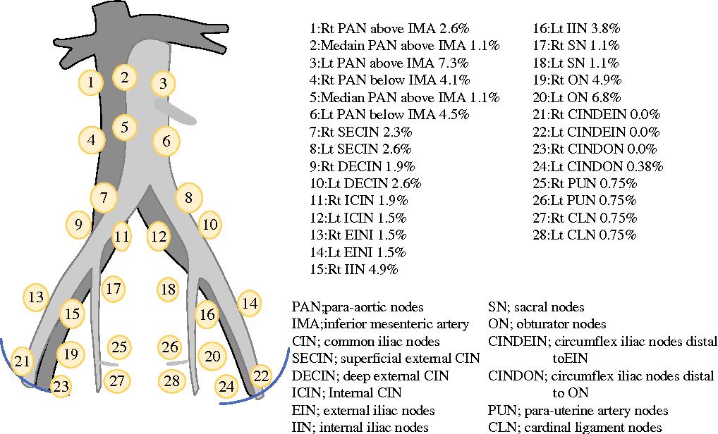 Distribution Of Lymph Node Metastasis Sites In Endometrial Cancer