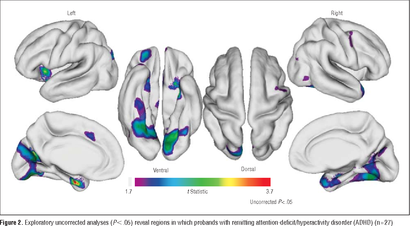 Brain Imaging Reveals Adhd As >> Figure 2 From Brain Gray Matter Deficits At 33 Year Follow Up In