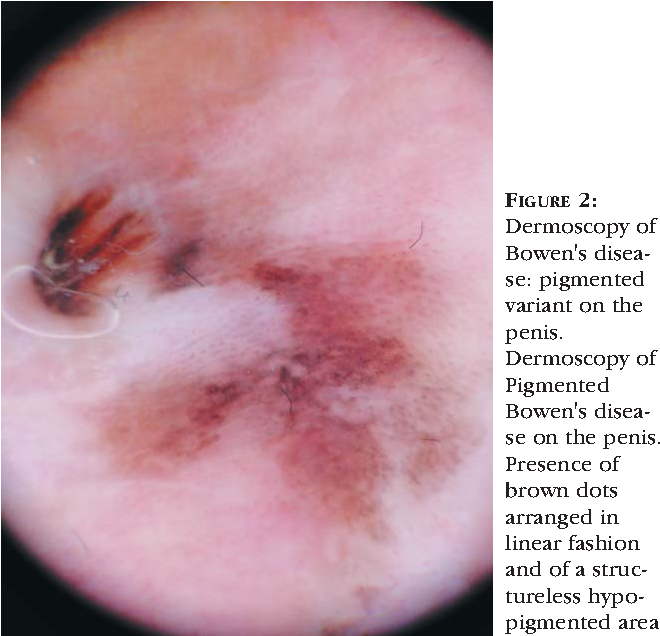 FIGURE 2: Dermoscopy of Bowen's disease: pigmented variant on the penis.  Dermoscopy of