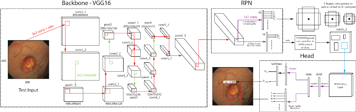 Figure 2 for An Efficient Approach for Polyps Detection in Endoscopic Videos Based on Faster R-CNN