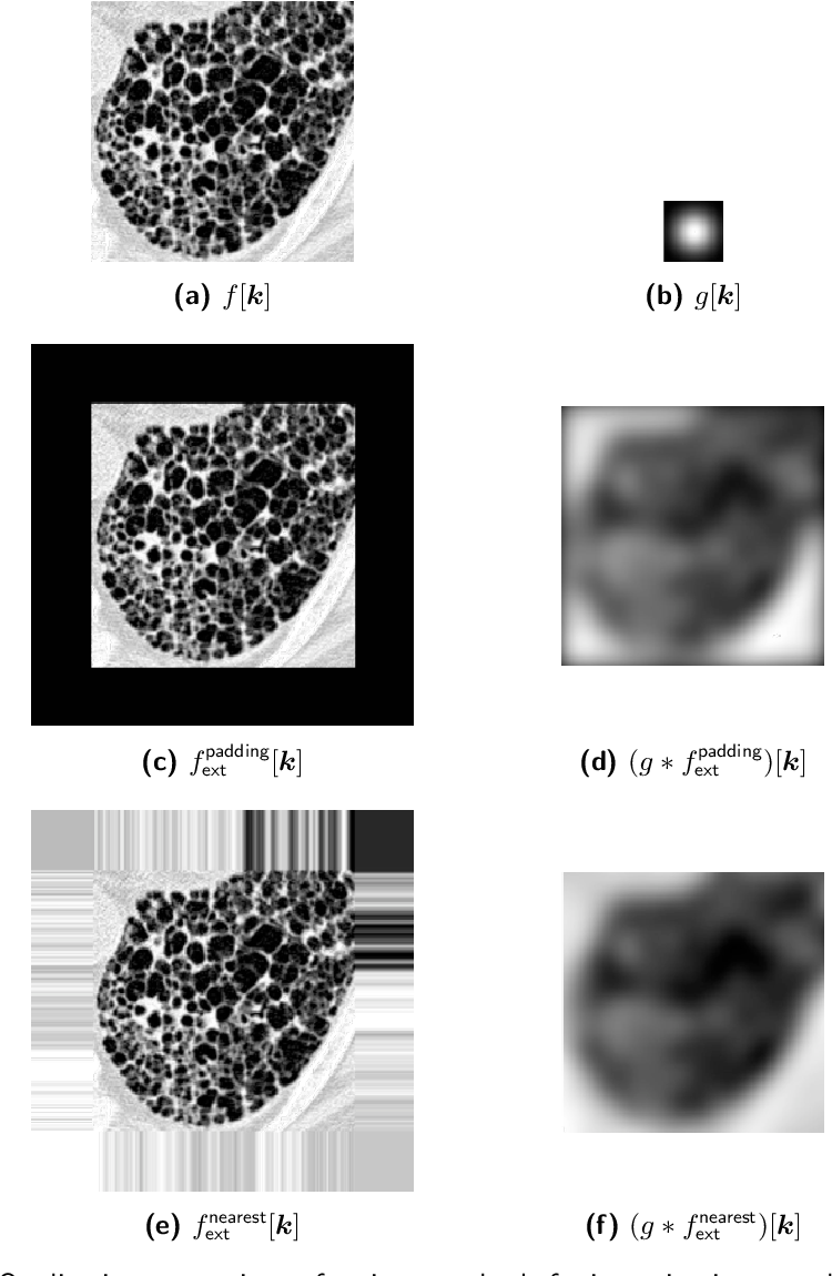 Figure 3 for Standardised convolutional filtering for radiomics