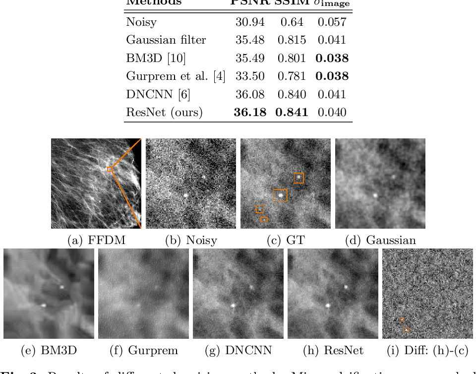 Figure 2 for Deep Learning-based Denoising of Mammographic Images using Physics-driven Data Augmentation