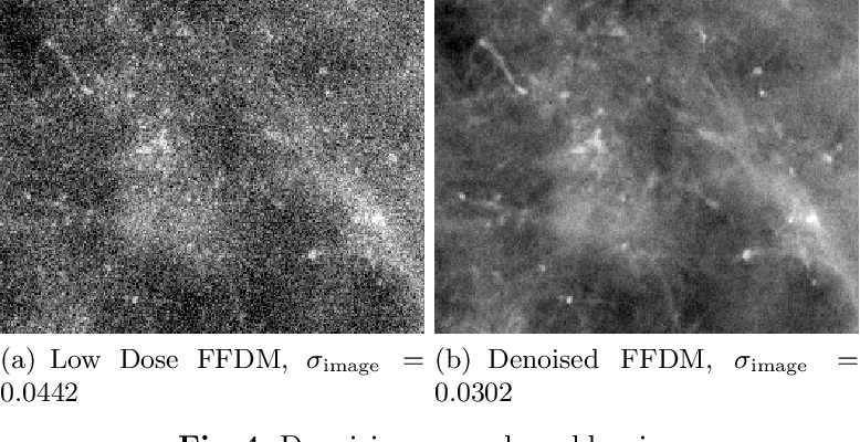 Figure 3 for Deep Learning-based Denoising of Mammographic Images using Physics-driven Data Augmentation