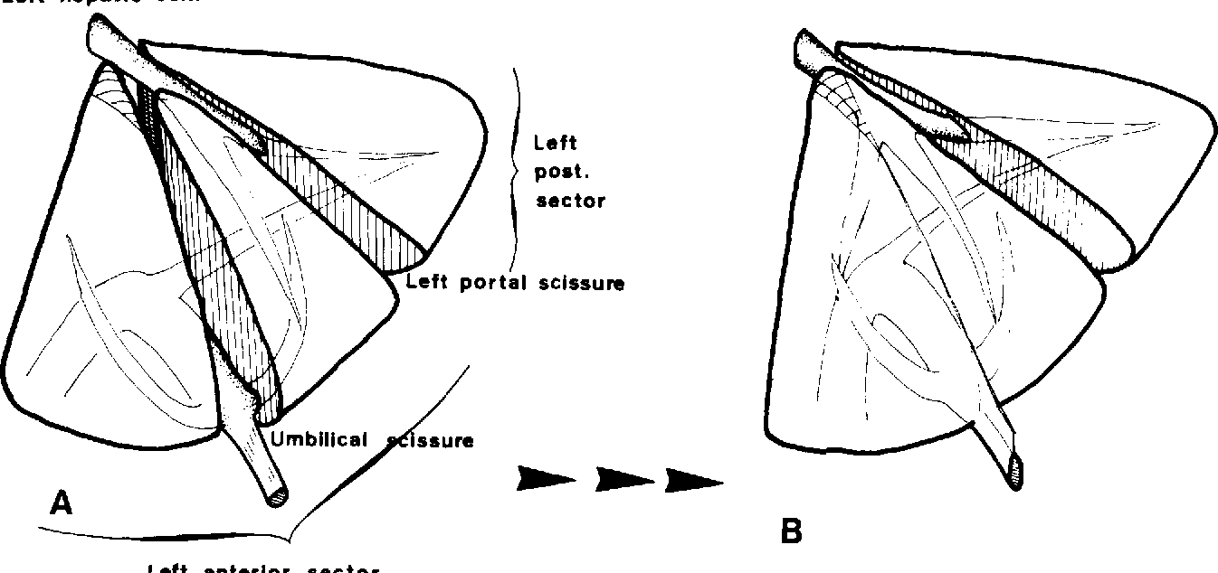 Surgical anatomy and anatomical surgery of the liver - Semantic Scholar