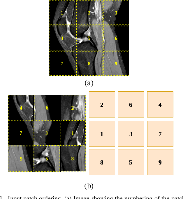 Figure 1 for Self-Supervised Representation Learning for Detection of ACL Tear Injury in Knee MRI