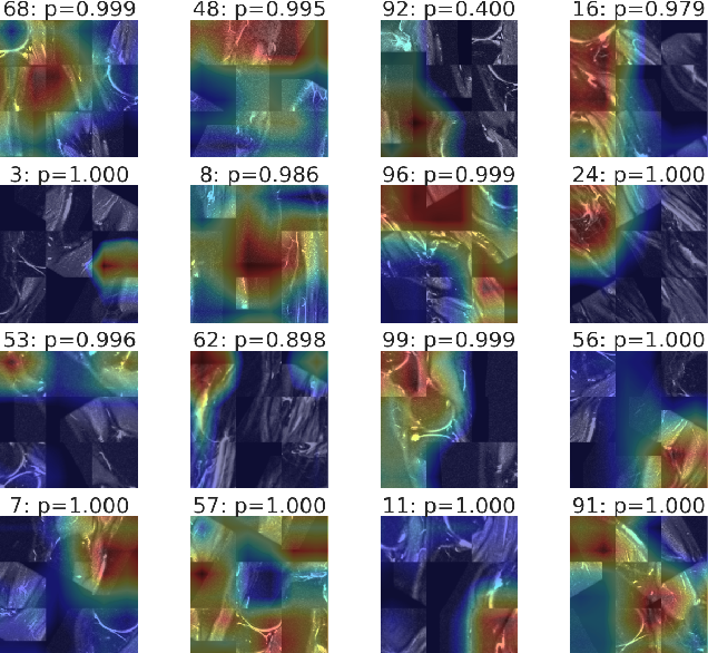 Figure 3 for Self-Supervised Representation Learning for Detection of ACL Tear Injury in Knee MRI