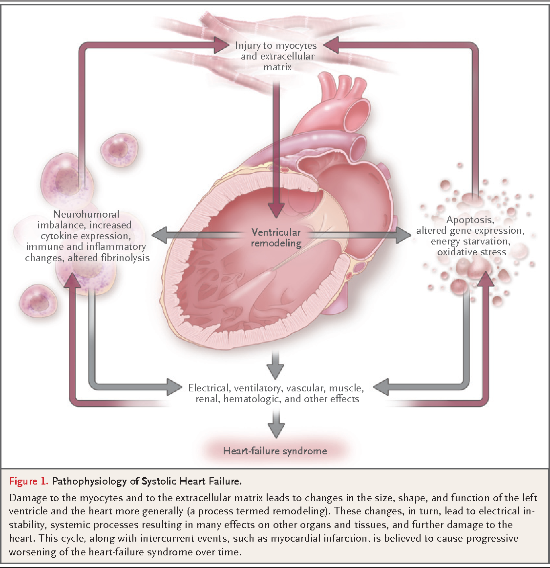 Table 1 from clinical practice systolic heart failure semantic figure 1 ccuart Gallery