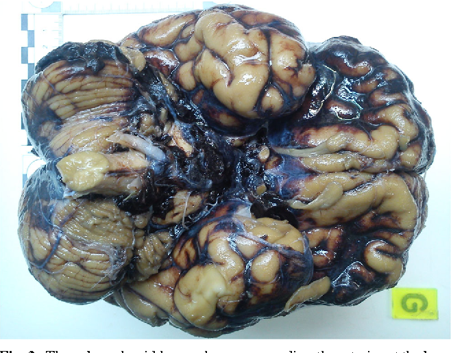 Paradoxical Undressing Associated With Subarachnoid Hemorrhage In A