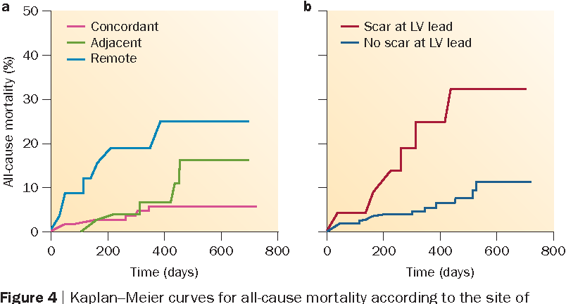 Figure 4   Kaplan–Meier curves for all-cause mortality according to the site of LVpacing in the TARGET study.78 a   A significant difference (P = 0.002) exists between patients with LV leads located concordant with, adjacent to (any of eight regions), orremote from the site of latest activation. b   Mortality also differed