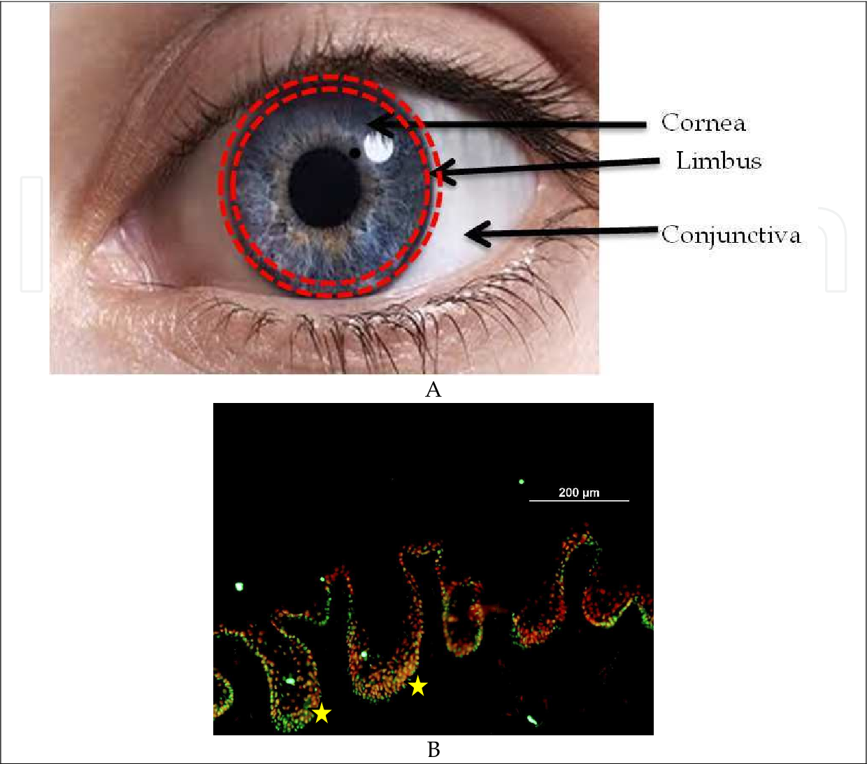Limbal Stem Cell Transplantation and Corneal Neovascularization ...