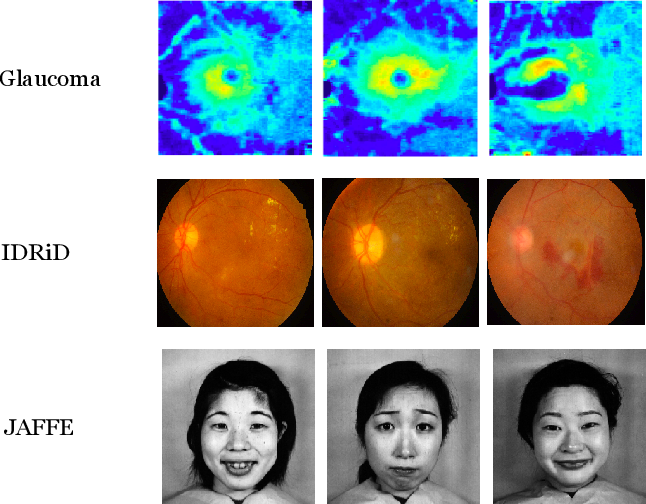 Figure 1 for A Novel Global Spatial Attention Mechanism in Convolutional Neural Network for Medical Image Classification