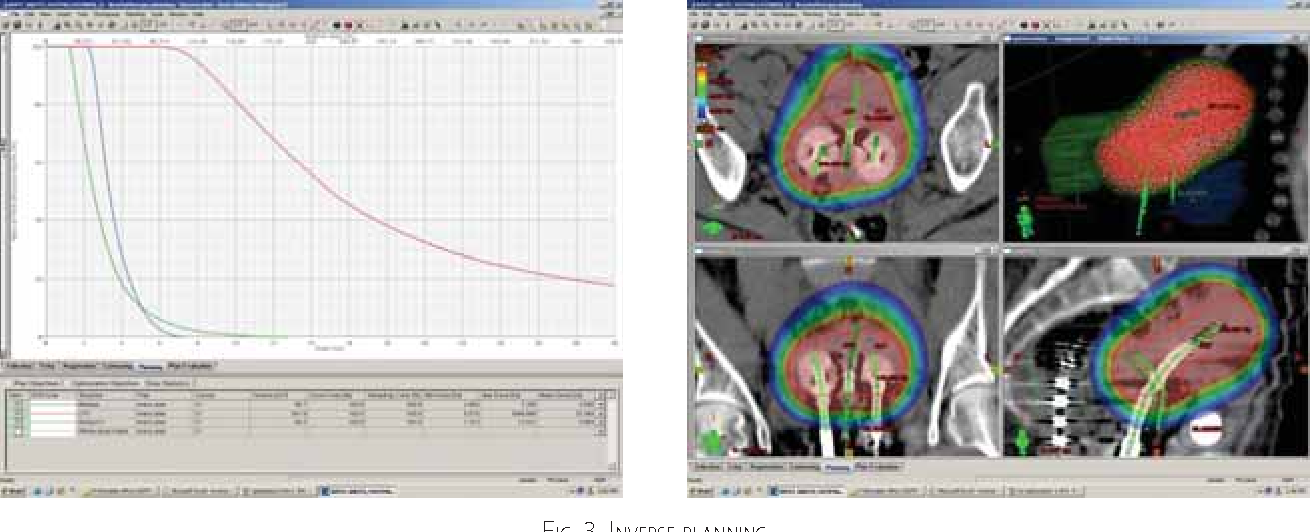 Figure 3 from 3D Anatomy-Based Planning Optimization For HDR