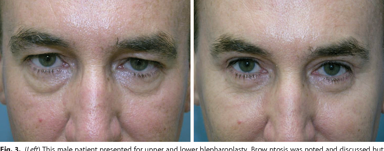 The role of the orbicularis oculi muscle and the eyelid crease in ...