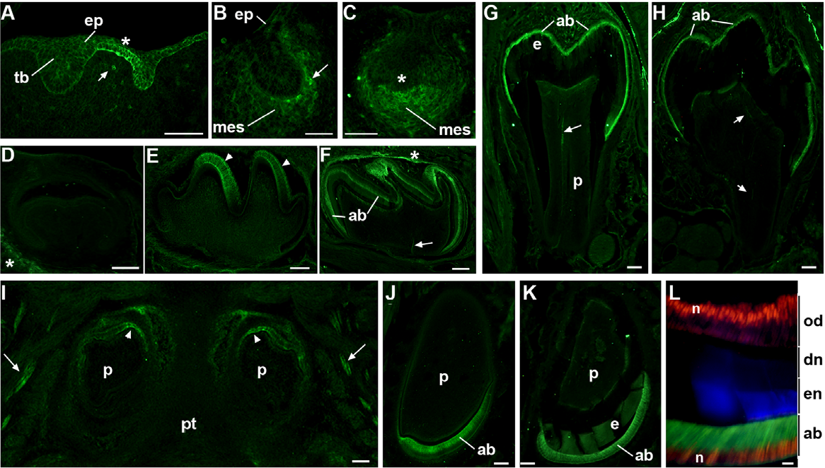 Figure 1. The expression of a7GFP changes during different developmental stages of tooth development. A) Sagittal sections prepared of the E11.5 oral cavity shows a7GFP expression, as detected by immunohistochemical staining for GFP expression, in the thickened dental lamina (asterisk) of the oral epithelium (ep) adjacent to or between developing tooth buds (tb). Only occasionally do cells of the underlying tissues including developing mesenchyme (mes) express detectable a7GFP (arrow). B) E13.5 epithelial a7GFP is no longer detected, but some cells in the developing mesenchyme (mes) at the border with the invaginated epithelium express a7GFP (arrow head). C) E14.5 (bud stage) cellular expression of a7GFP is enriched in cells of the condensing mesenchyme where it is particularly intense adjacent to overlaid epithelium and the primary enamel knot (asterisk). D) The expression of a7GFP rapidly diminishes after E14.5 and is not detected in the E16.5 bell stage tooth organ except in surrounding neuronal processes (asterisk). E) a7GFP expression returns in the E18.5 late bell stage where it is restricted to epithelial derived ameloblasts (arrow heads). F) P4 ameloblasts (ab) express a7GFP and pioneering nerve fibers are also present (arrow) as well as in some residual nerve fibers still surrounding the tooth organ (asterisk). G) Molar teeth at P7 show a7GFP expression by ameloblasts (ab) and the notable expansion of the enamel layer (e). A nerve fiber is also seen (arrow) in the dental pulp (p). H) By P12, ,2days prior to eruption, the molar enamel is essentially complete and ameloblasts (ab) are degenerating and there is a coincident decrease in intensity of the a7GFP signal. Again, nerves innervating the tooth are present arrow. I) In the incisors a7GFP expression is initiated somewhat earlier than molars where it can be seen in this horizontal section of ameloblasts at the most dorsal-medial aspect of these developing teeth of the maxillary group (arrowheads). Trigeminal nerves (arrows) are also revealed by a7GFP expression. The dental pulp (p) and pallet (pt) are identified. J) At birth (P0) there is strong expression of a7GFP by all ameloblasts (ab) as seen in this mandibular incisor. The dental pulp is noted (p). K) By P12 a7GFP expression is still observed in ameloblasts (ab) and the increase in enamel (en) deposition is apparent (enamel auto-fluorescence also appears green). M) Increased magnification of the P12 incisor stained for coincident expression of a7GFP (Green) that is seen in the ameloblast cell bodies (ab) and the nuclear transcription factor, Cux1 (red) which identifies nuclei (n) in both ameloblasts (ab) and odontoblasts (od), which do not express a7GFP. The enamel (en) is auto-fluorescent (blue in this merged image) and the dentine (dn) layer is identified. Bars = 100 mm (A–J); 50 mm (L). doi:10.1371/journal.pone.0036467.g001