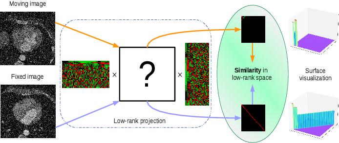 Figure 1 for A low-rank representation for unsupervised registration of medical images