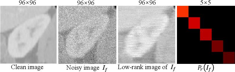 Figure 3 for A low-rank representation for unsupervised registration of medical images