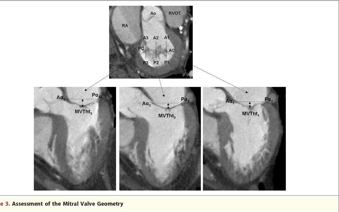 Assessment of mitral valve anatomy and geometry with multislice ...