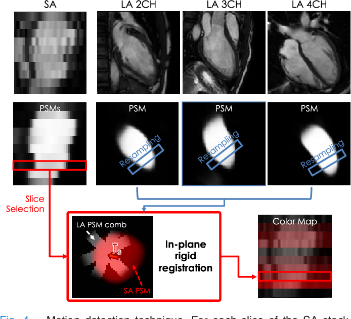 Figure 4 for Learning-Based Quality Control for Cardiac MR Images