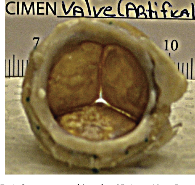 Fig 1. Gross appearance of the explanted Perimount Magna Ease valve in patient 1. Note the lightly calcified frozen valve leaflets in the diastolic position.