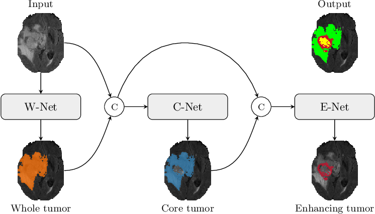 Figure 1 for TuNet: End-to-end Hierarchical Brain Tumor Segmentation using Cascaded Networks