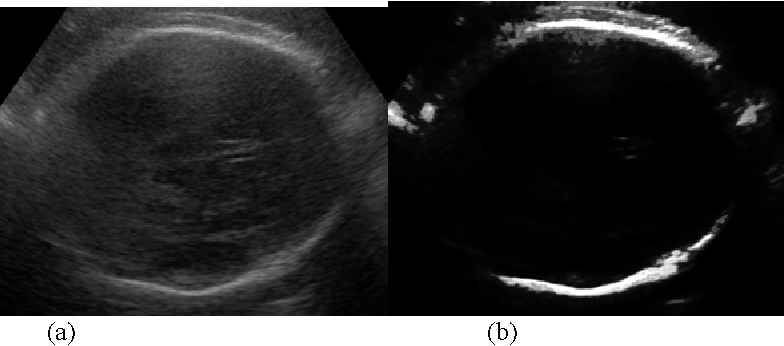 An Analytical Study On 2 D Ultrasound Fetal Anatomy Measurement