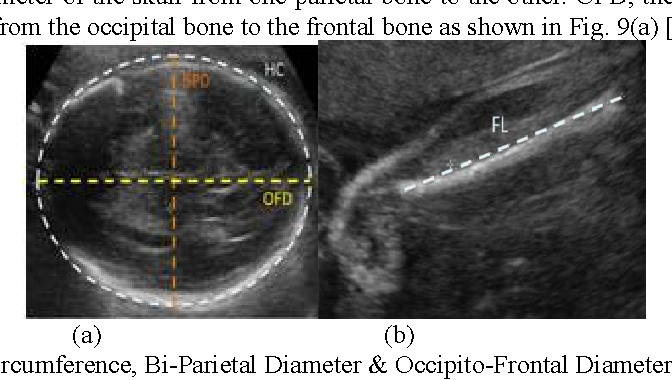 Figure 9 From An Analytical Study On 2 D Ultrasound Fetal Anatomy