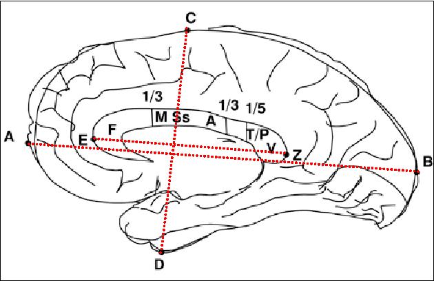 Morphometry of corpus callosum : an anatomical study - Semantic Scholar