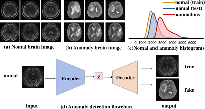 Figure 1 for Brain Tumor Anomaly Detection via Latent Regularized Adversarial Network