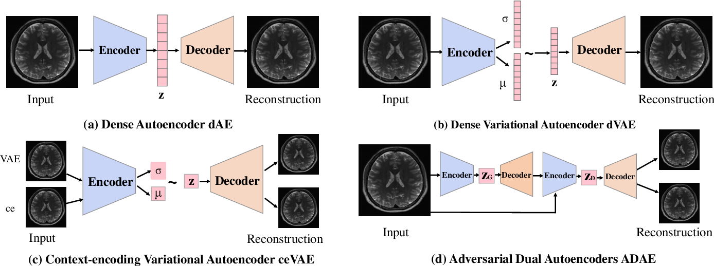 Figure 3 for Brain Tumor Anomaly Detection via Latent Regularized Adversarial Network