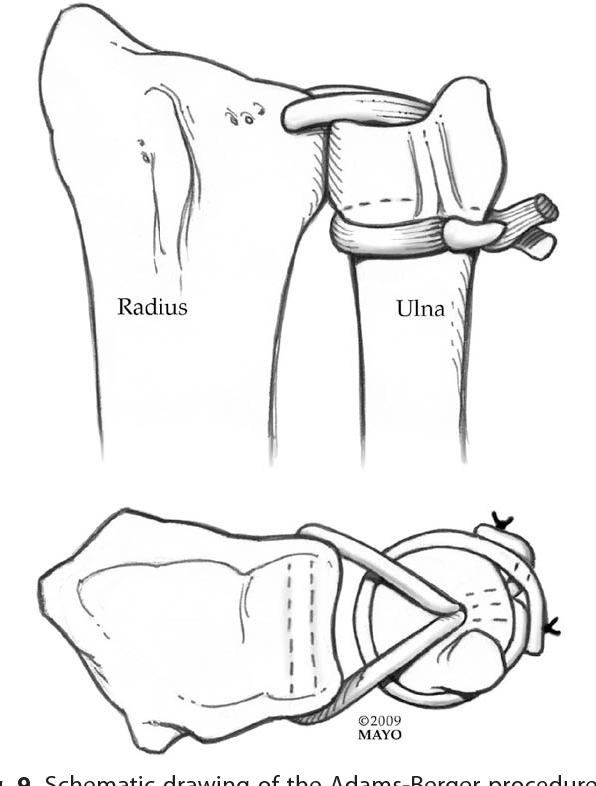 Figure 5 From Disorders Of The Distal Radioulnar Joint