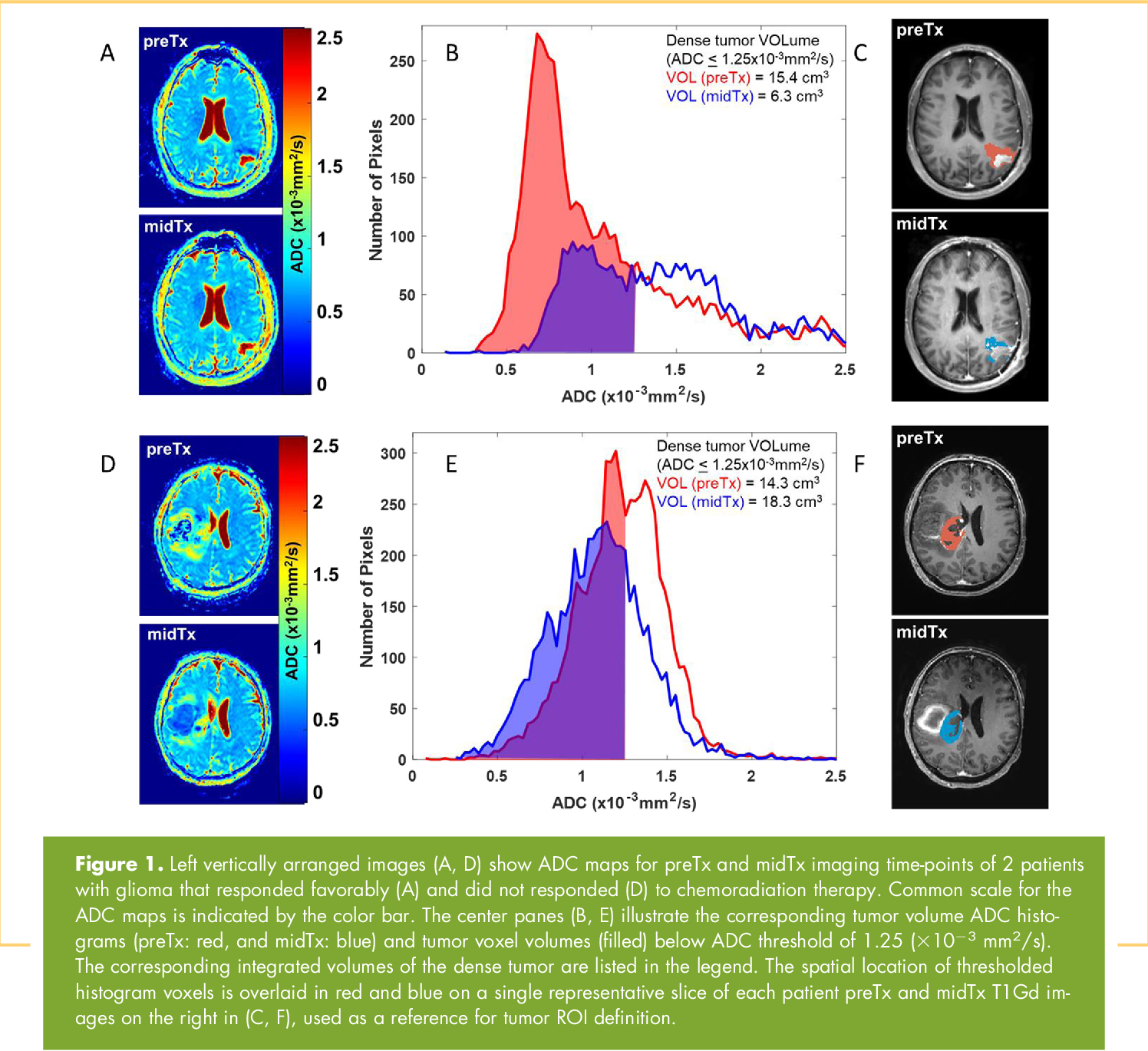 PDF] Comparison of Voxel-Wise and Histogram Analyses of Glioma ADC