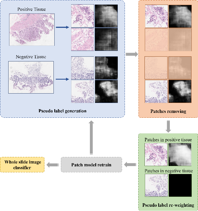 Figure 2 for Mixed Supervision Learning for Whole Slide Image Classification