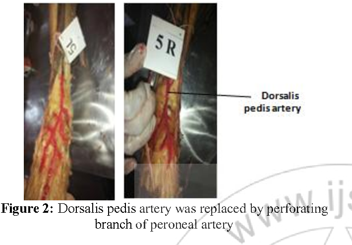 An Anatomical Study on Dorsalis Pedis Artery - Semantic Scholar
