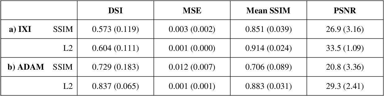 Figure 1 for Variational Autoencoders with a Structural Similarity Loss in Time of Flight MRAs