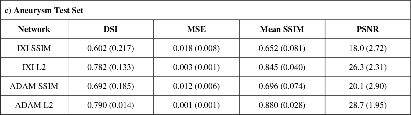Figure 4 for Variational Autoencoders with a Structural Similarity Loss in Time of Flight MRAs