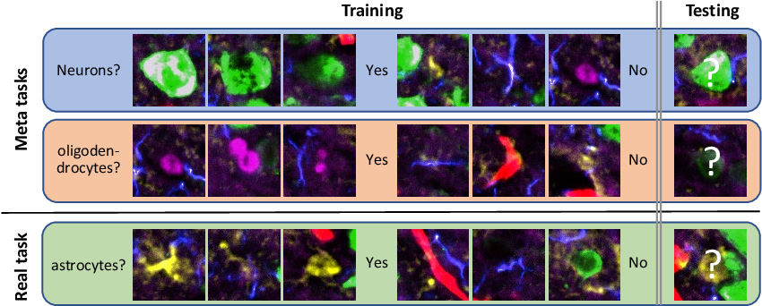Figure 1 for Few Is Enough: Task-Augmented Active Meta-Learning for Brain Cell Classification