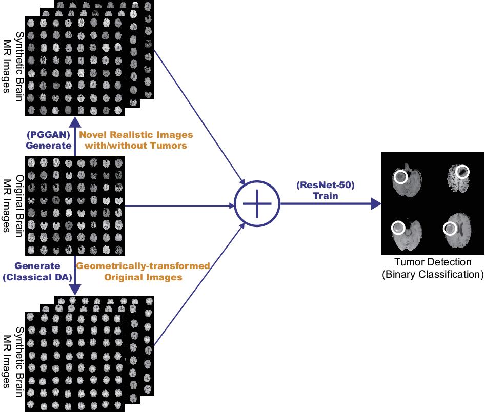 Figure 1 for Infinite Brain MR Images: PGGAN-based Data Augmentation for Tumor Detection