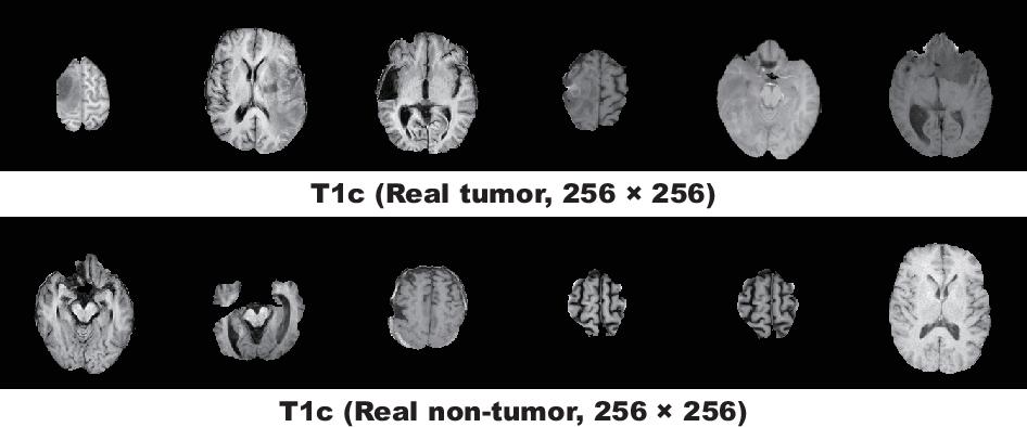 Figure 3 for Infinite Brain MR Images: PGGAN-based Data Augmentation for Tumor Detection