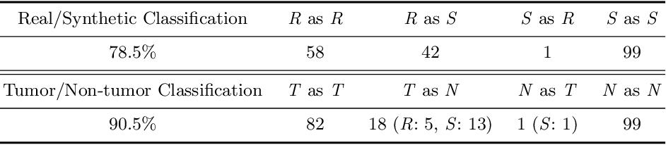 Figure 4 for Infinite Brain MR Images: PGGAN-based Data Augmentation for Tumor Detection