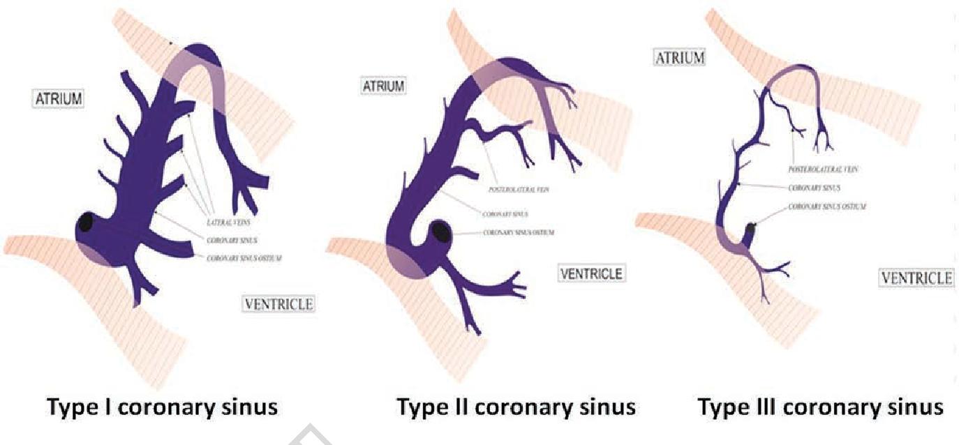 Advances in Vein Therapies Coronary Sinus Anatomy : Ajmer Working ...