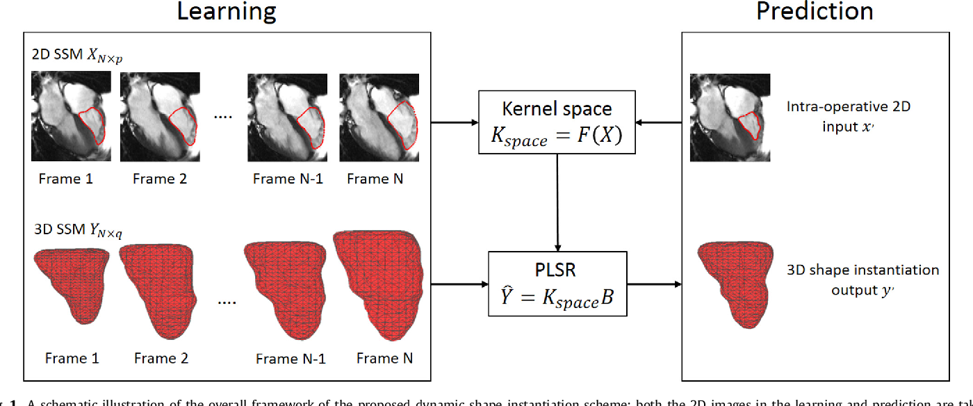 Figure 1 for A Real-time and Registration-free Framework for Dynamic Shape Instantiation