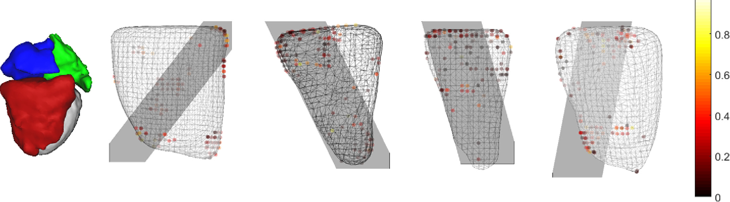 Figure 4 for A Real-time and Registration-free Framework for Dynamic Shape Instantiation