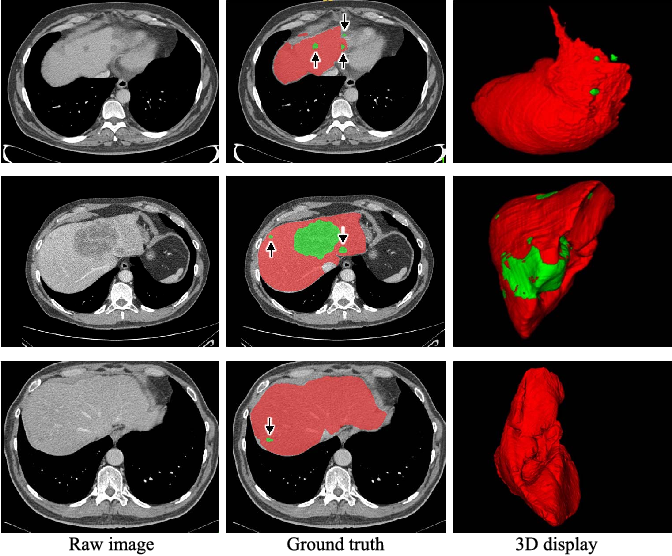 Figure 1 for H-DenseUNet: Hybrid Densely Connected UNet for Liver and Tumor Segmentation from CT Volumes