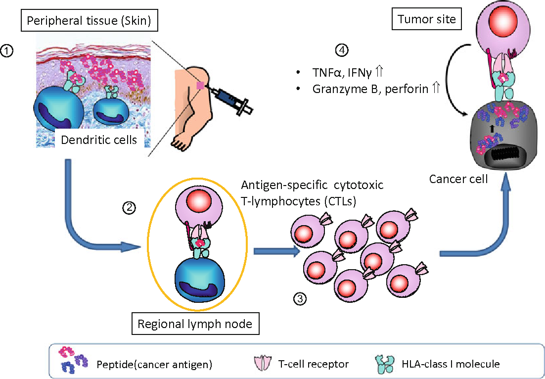 Immunotherapy Targeting WT1: Designing a Protocol for WT1