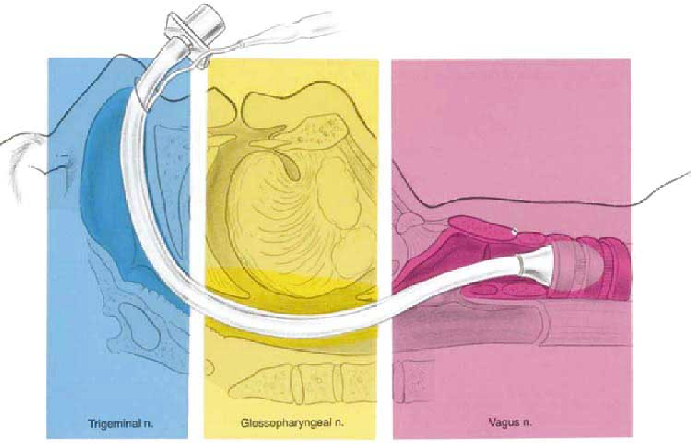 Airway regional anesthesia for awake fiberoptic intubation ...